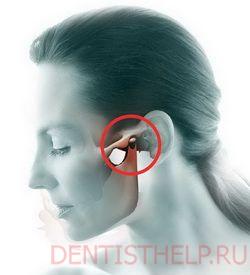 лечение височно-челюстного артрита сустава