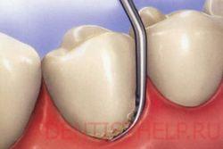зубной налет причина желтых зубов