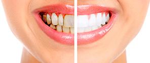 чистка зубов акция