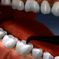 Диагностика скрытого кариеса при помощи лазера