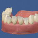 Генерализованный пародонтит нижней челюсти