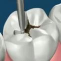 Удаление кариеса и восстановление зубов