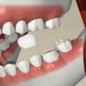 Установка шитифта и депульпация зуба