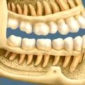 Виды зубных заболеваний