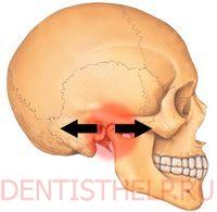 Укрепление челюстных суставов отводящая подушка эндопротезирования тазобедренного сустава