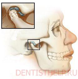 Нарушение функции височно-челюстного сустава артропатия суставов нижних суставов