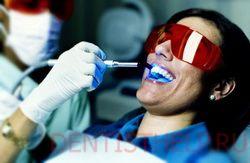 лазерная чистка желтых и серых зубов