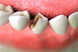 Что делать если отвалился кусочек зуба