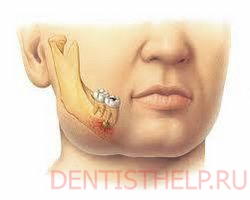 Болезни зубов фото с описанием