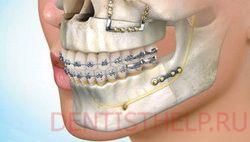 челюстно-лицевая хирургия - одно из показаний для пьезохирургии