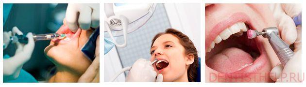 этапы сверления зуба