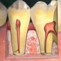Анатомия зубов и периодонта