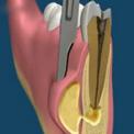 Лечение флюса (абцесса) с сохранением зуба