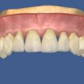 Генерализованный пародонтит верхней челюсти