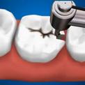 Лечение кариеса и пломбирование зубов