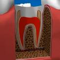 Лечение пульпита и восстановление зуба