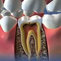 Лечение сломанного зуба после кариеса