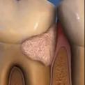 Проблемы пародонта и зубной камень