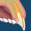 Реплантация зубов после травм
