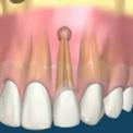 Удаление гранулемы без потери зуба