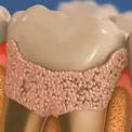 Процесс удаления зубного камня