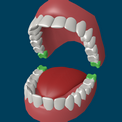 Как удаляются зубы мудрости