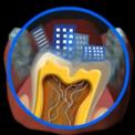 Что такое зубной налет