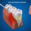 Снятие зубного камня и налета